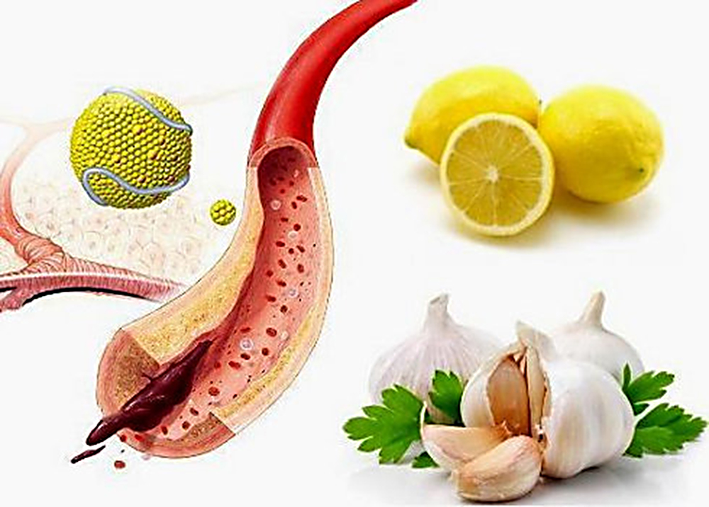 чистить сосуды от холестерина препараты
