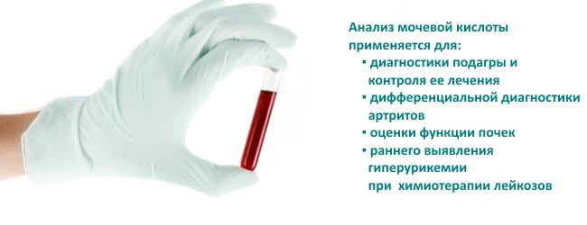 Что делать при высокой мочевой кислоте в крови
