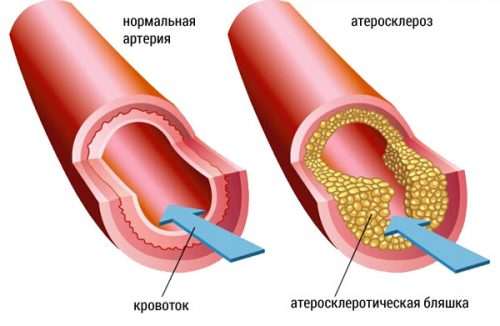 повышенный холестерин причины у худых