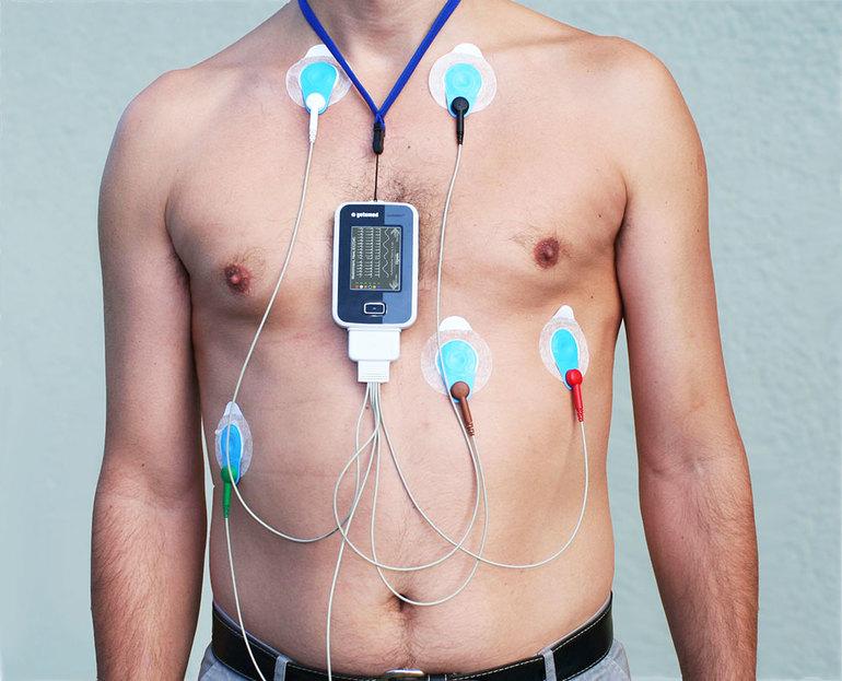 Аппараты для сердца картинки