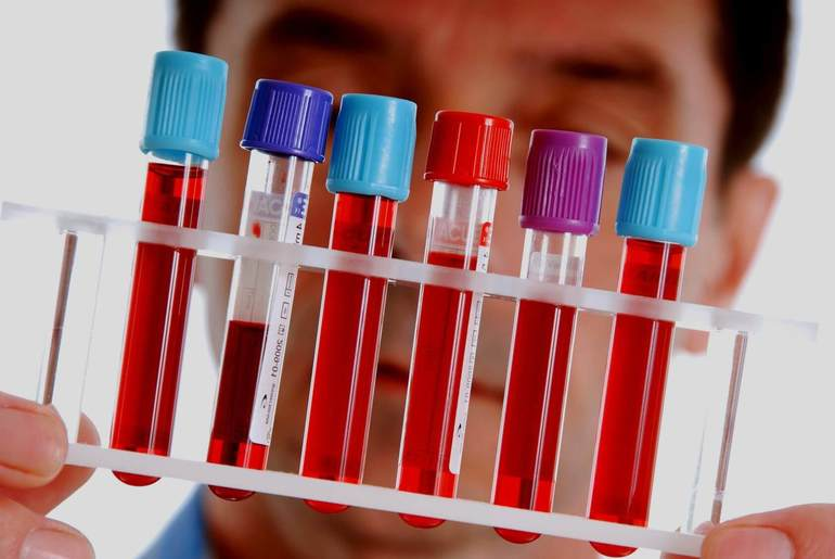 Уровень амилазы в крови