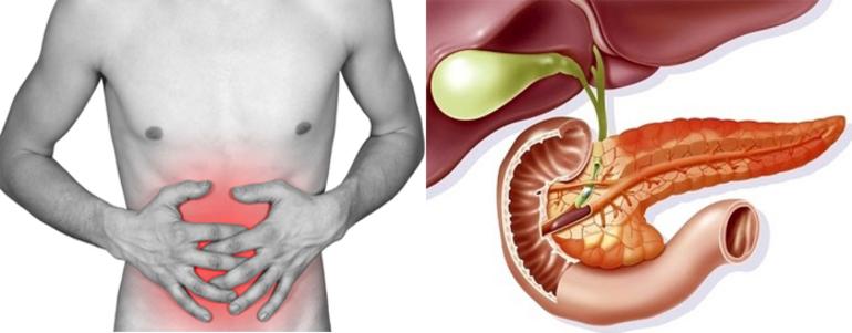 Заболевание панкреонекроз