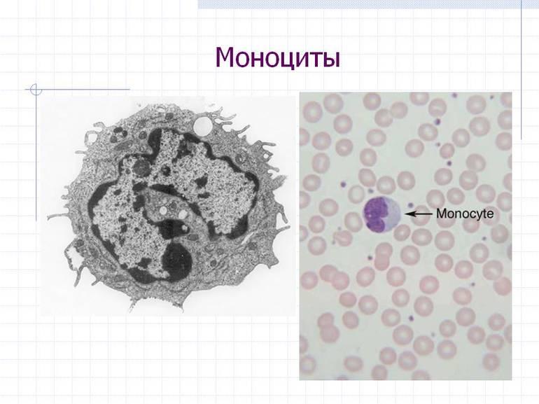 всех видах моноциты в картинках студсовета горничная