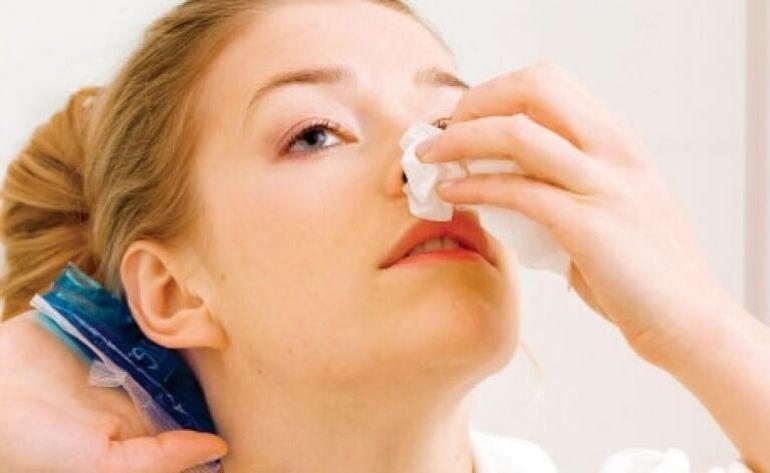 Носовые кровотечения, причины у взрослых