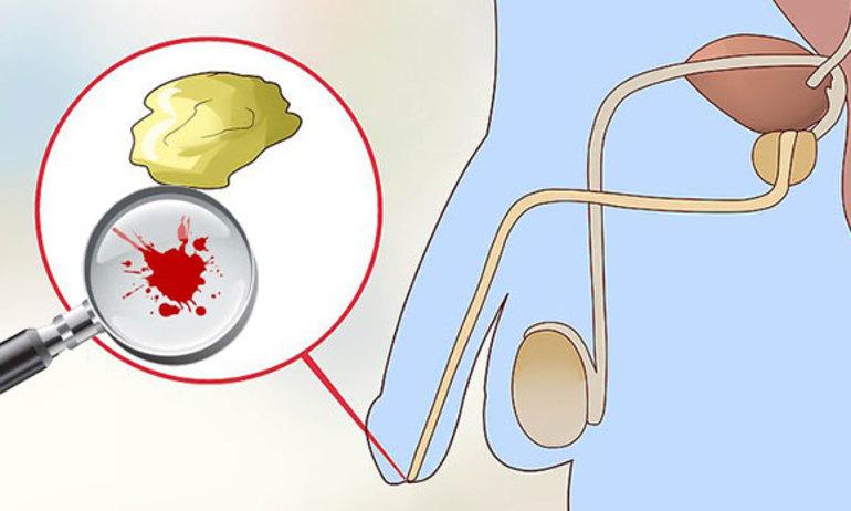 лежала выброс спермы рекорды упругое, без единого
