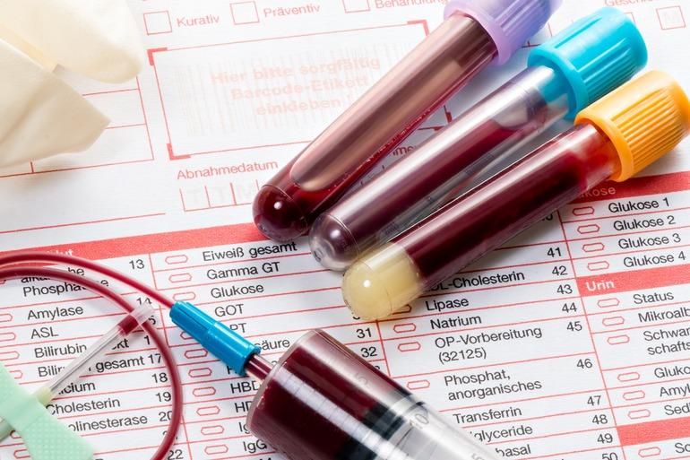 Пти анализ крови