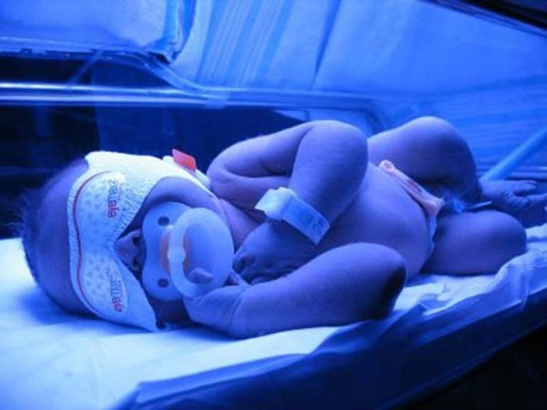 Особенности нормы и критического предела билирубина у новорожденных