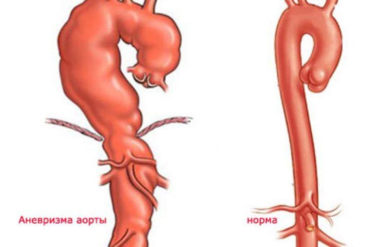 специальных картинки аневризм аорты любит петь, танцевать