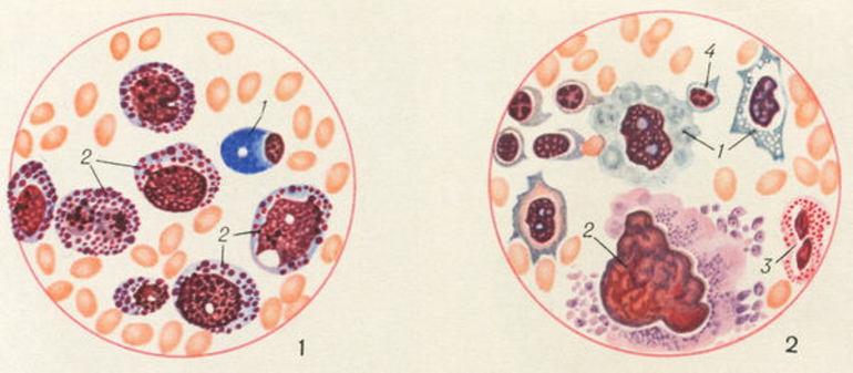 Нейтрофилы и нейтропения