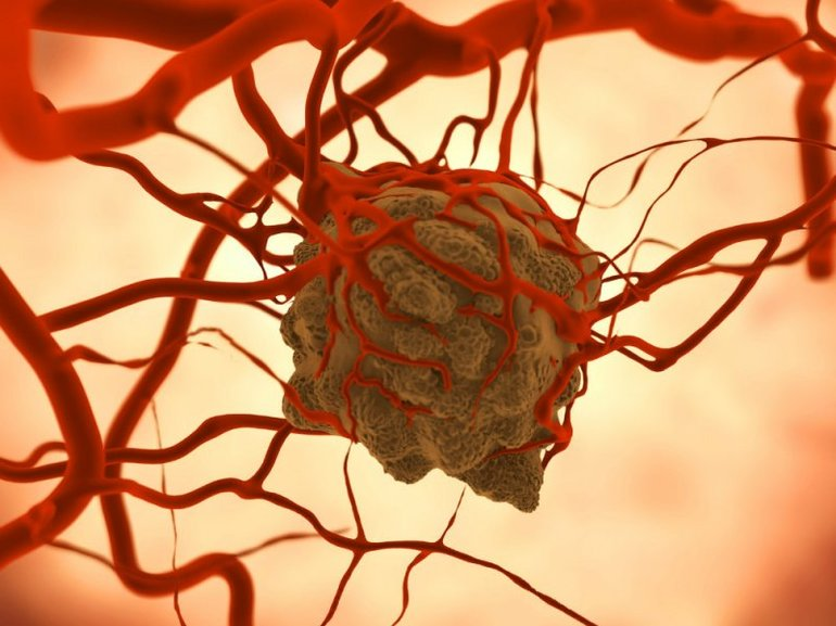Наличие в организме злокачественных опухолей,