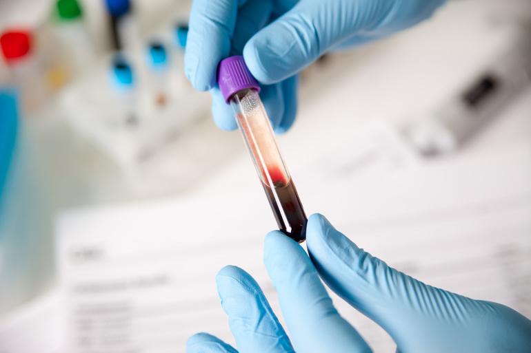 Отрицательное значение иммуноглобулина G