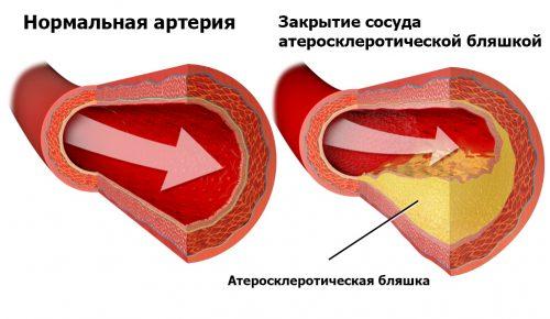 ТромбоАСС для разжижения крови — как его принимать: советы врачей, инструкция. Как принимать тромбоасс для профилактики