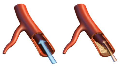 Прогрессирующая стадия атеросклероза
