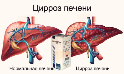 печень и цирроз