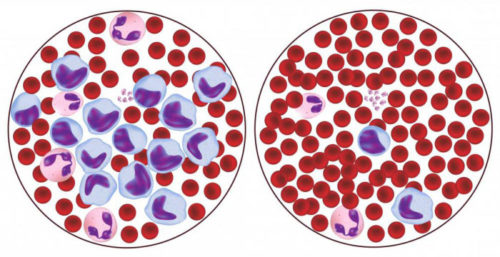 понижены лимфоциты