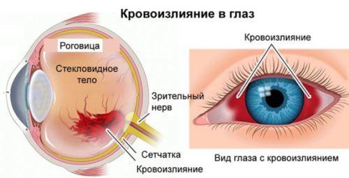 Причины красного глаза