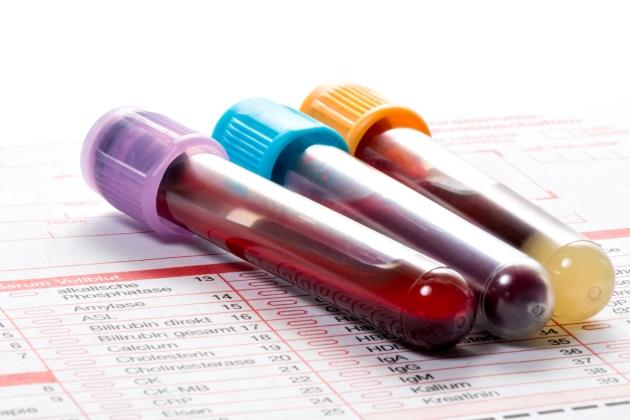 повышены лимфоциты в крови