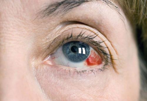 Лопнул сосуд в глазу - симптомы