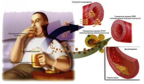Причины появления атеросклероза