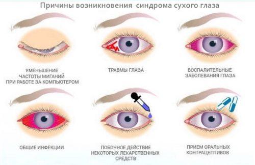 Причины-развития-синдрома-сухого-глаза