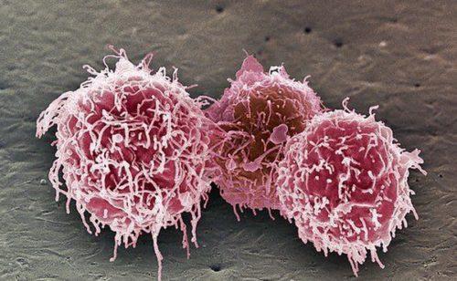 Лимфоциты 47 у женщин