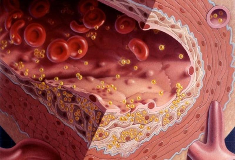 кровь и холестерин