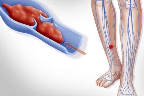 Варикозная экзема на ногах лечение недорогие мази