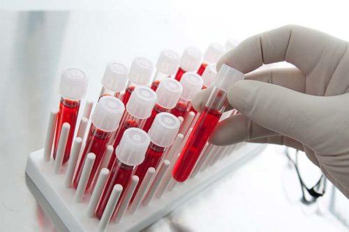 Липемия крови при сдаче анализов что это