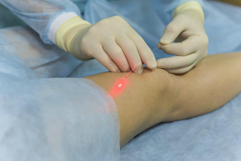 Лазерная флебэктомия