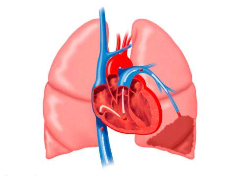 Тромбоэмболия легочной артерии прогноз для жизни