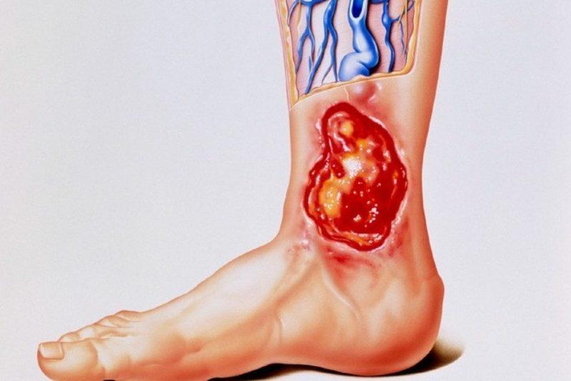 лечение варикозной язвы