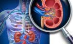 Почечная артериальная гипертензия