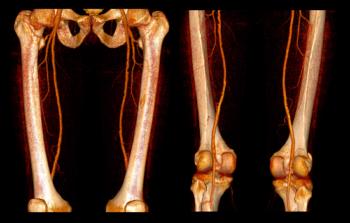 побочные эффекты ангиографии сосудов нижних конечностей