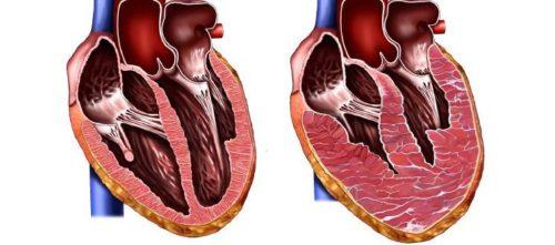 Умеренная гипертрофия левого желудочка что это такое