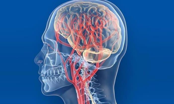 лечение лейкоэнцефалопатия головного мозга