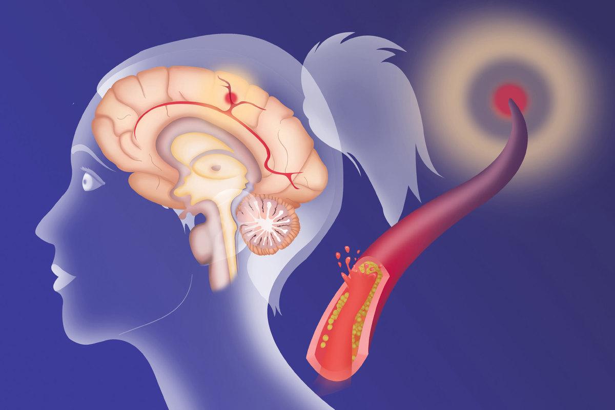болезнь нарушение мозгового кровообращения