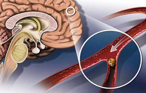Плохое кровообращение головного мозга лечение