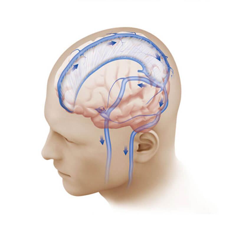 как лечить повышенное внутричерепное давление у взрослых
