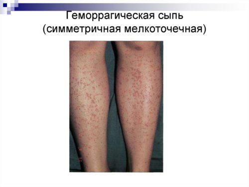 Геморрагическая сыпь у детей фото