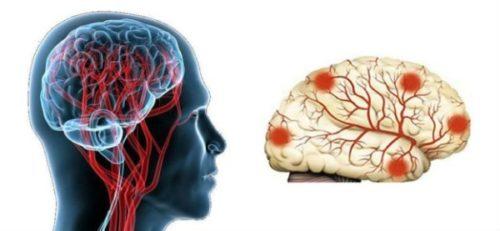 сосудистая энцефалопатия головного мозга - причины