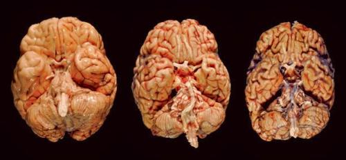 Признаки сосудистой энцефалопатии головного мозга