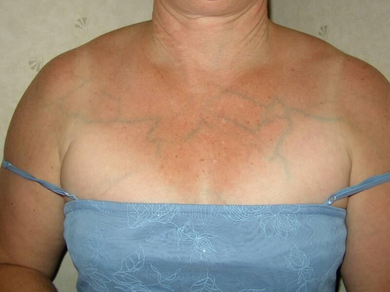 Видны вены на груди