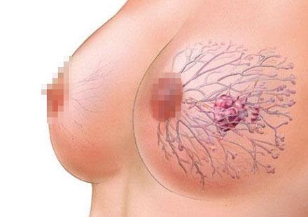 Возникновение вен на груди