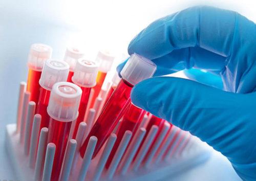 Общий анализ крови что показывает у женщин