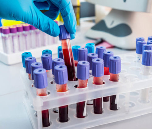 Лейкоциты в крови 8 2