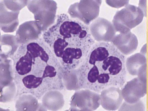 Повышение сегментоядерные нейтрофилы