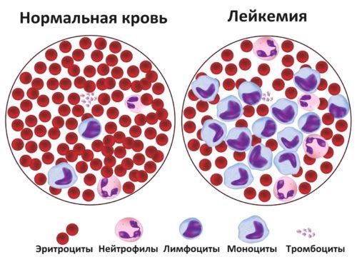 белокровие