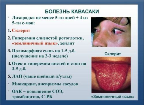 синдром кавасаки
