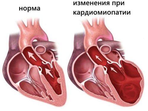алкогольная кардиомиопатия