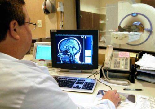 лейкоареоз головного мозга: